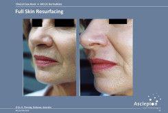 bejda-medical-fotoodmladzanie-i-peelingi-laserowe-przed-i-po-02