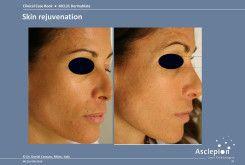 bejda-medical-fotoodmladzanie-i-peelingi-laserowe-przed-i-po-04