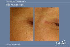 bejda-medical-fotoodmladzanie-i-peelingi-laserowe-przed-i-po-05