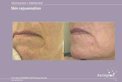 bejda-medical-fotoodmladzanie-i-peelingi-laserowe-przed-i-po-06