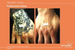 bejda-medical-usuwanie-tatuazy-usuwanie-makijazu-przed-i-po-01