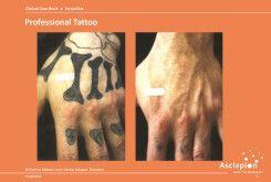 bejda-medical-usuwanie-tatuazy-usuwanie-makijazu-przed-i-po-02
