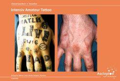 bejda-medical-usuwanie-tatuazy-usuwanie-makijazu-przed-i-po-03